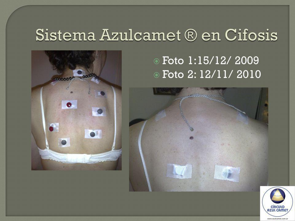 Foto 1:15/12/ 2009 Foto 2: 12/11/ 2010