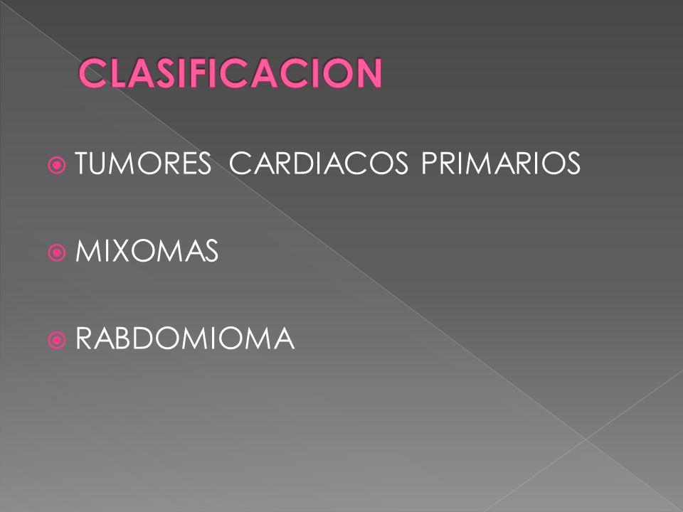 TUMORES CARDIACOS PRIMARIOS MIXOMAS RABDOMIOMA