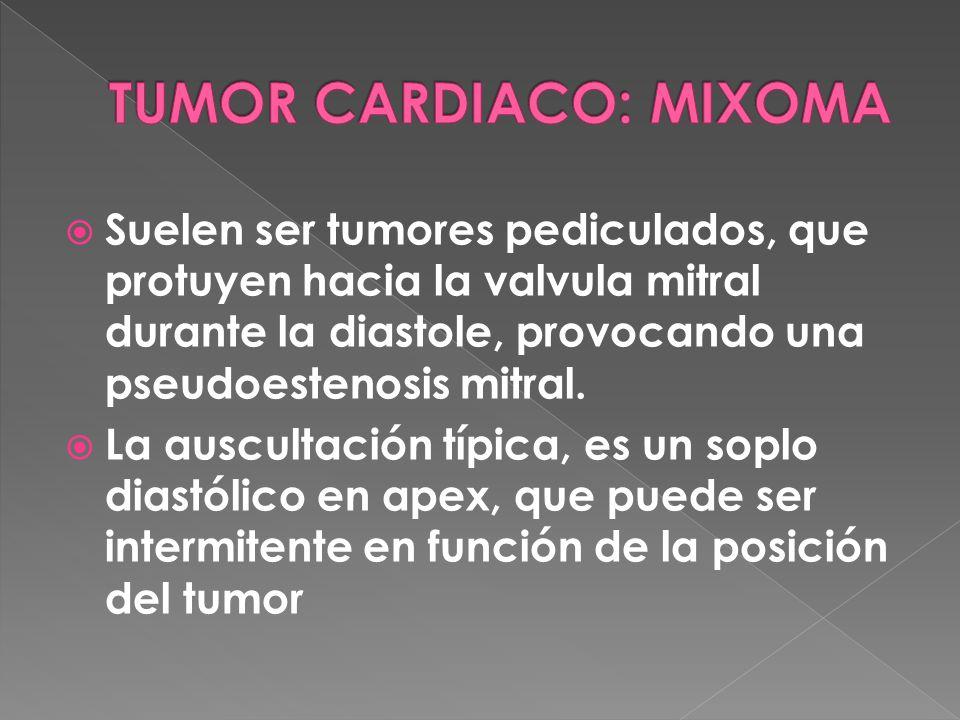 Suelen ser tumores pediculados, que protuyen hacia la valvula mitral durante la diastole, provocando una pseudoestenosis mitral.