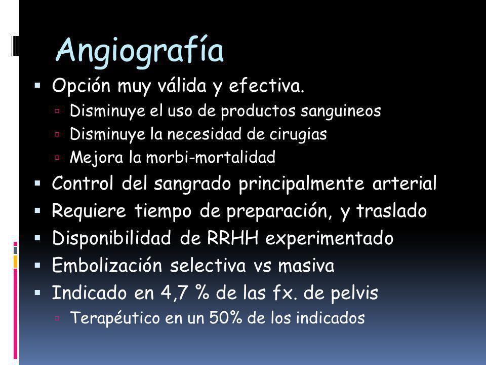 Angiografía Opción muy válida y efectiva.