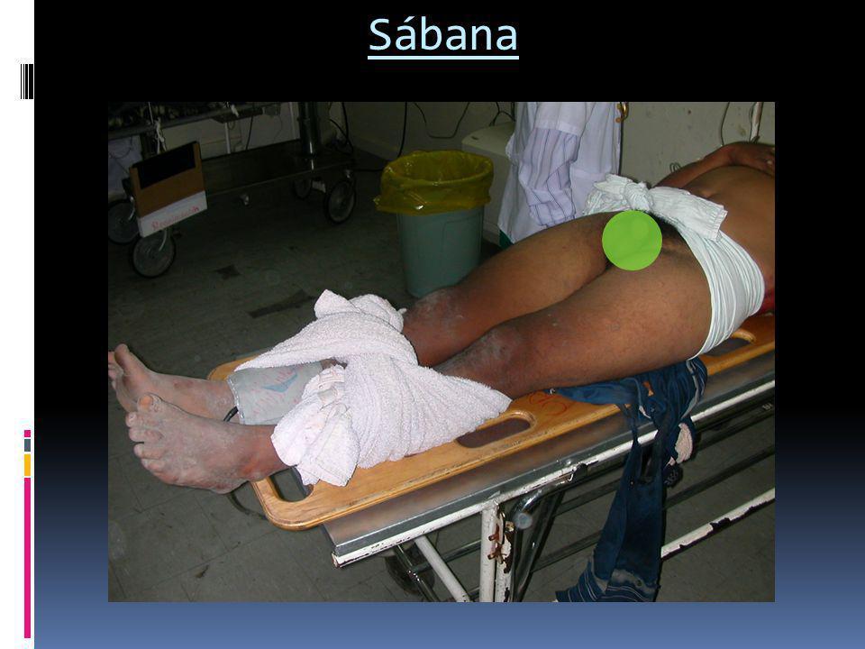 Sábana