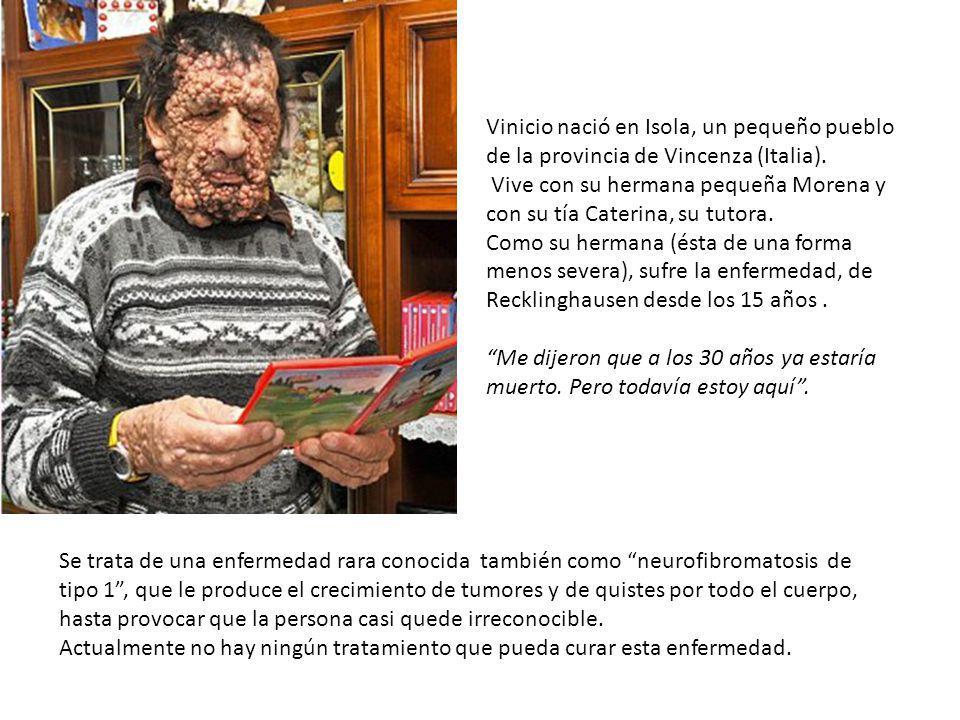 En la Plaza de San Pedro abarrotada Francisco fijó sus ojos en un enfermo que habían llevado en peregrinación, una persona gravemente enferma con gran