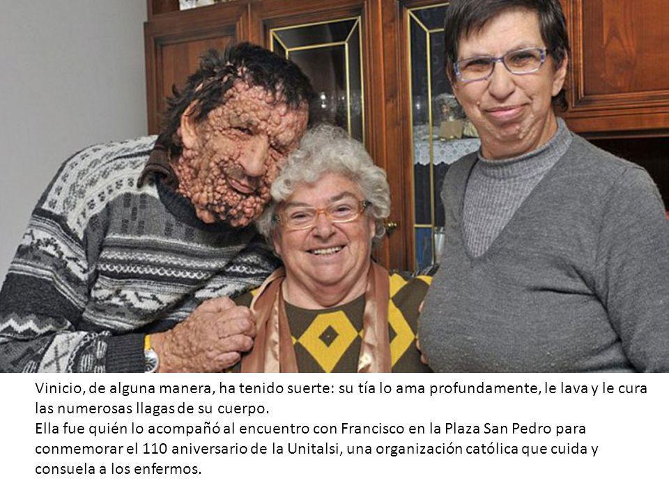 Vinicio, de alguna manera, ha tenido suerte: su tía lo ama profundamente, le lava y le cura las numerosas llagas de su cuerpo.