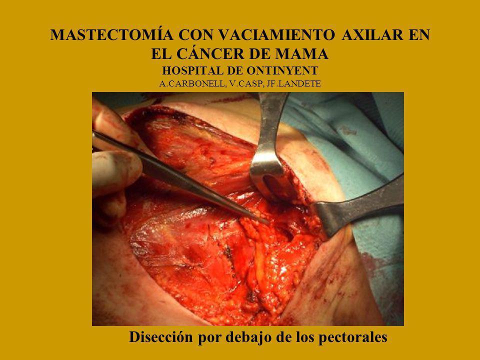 MASTECTOMÍA CON VACIAMIENTO AXILAR EN EL CÁNCER DE MAMA HOSPITAL DE ONTINYENT A.CARBONELL, V.CASP, JF.LANDETE Disección por debajo de los pectorales