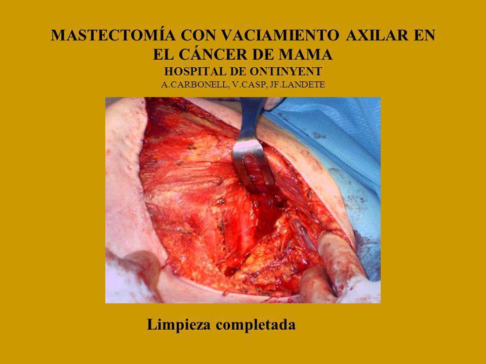 MASTECTOMÍA CON VACIAMIENTO AXILAR EN EL CÁNCER DE MAMA HOSPITAL DE ONTINYENT A.CARBONELL, V.CASP, JF.LANDETE Limpieza completada