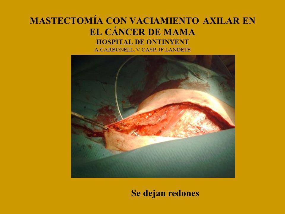 MASTECTOMÍA CON VACIAMIENTO AXILAR EN EL CÁNCER DE MAMA HOSPITAL DE ONTINYENT A.CARBONELL, V.CASP, JF.LANDETE Se dejan redones