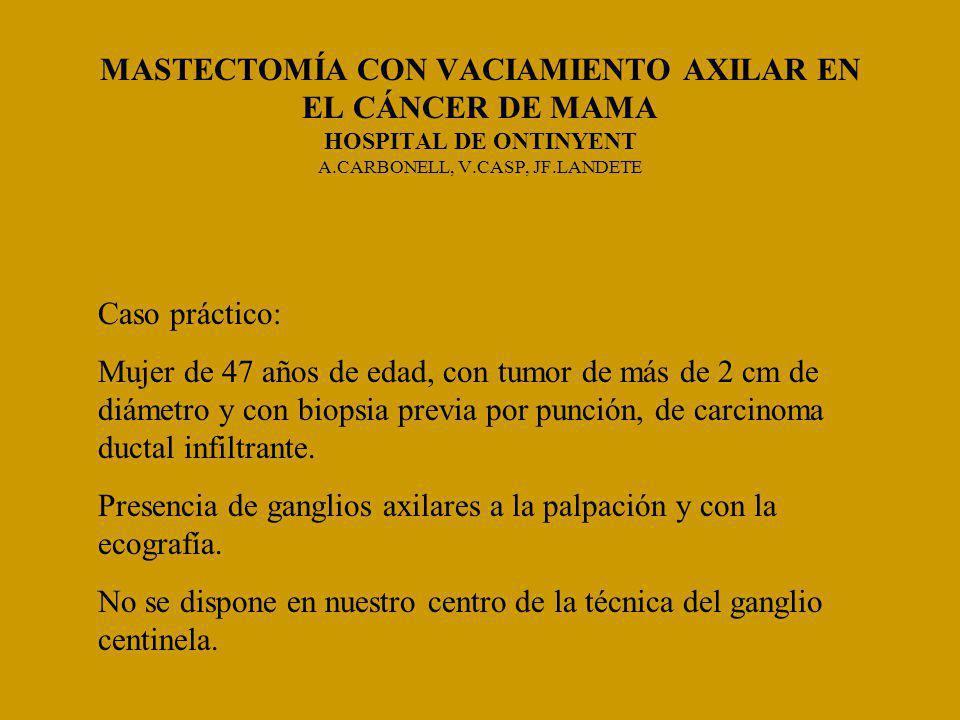 MASTECTOMÍA CON VACIAMIENTO AXILAR EN EL CÁNCER DE MAMA HOSPITAL DE ONTINYENT A.CARBONELL, V.CASP, JF.LANDETE Caso práctico: Mujer de 47 años de edad, con tumor de más de 2 cm de diámetro y con biopsia previa por punción, de carcinoma ductal infiltrante.