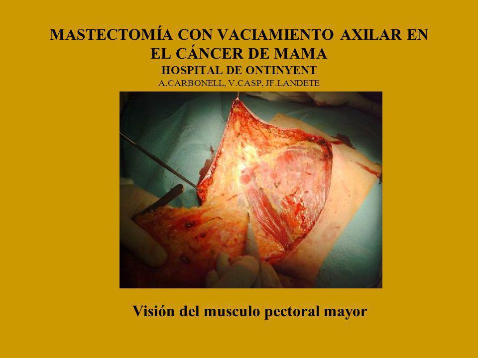 MASTECTOMÍA CON VACIAMIENTO AXILAR EN EL CÁNCER DE MAMA HOSPITAL DE ONTINYENT A.CARBONELL, V.CASP, JF.LANDETE Visión del musculo pectoral mayor