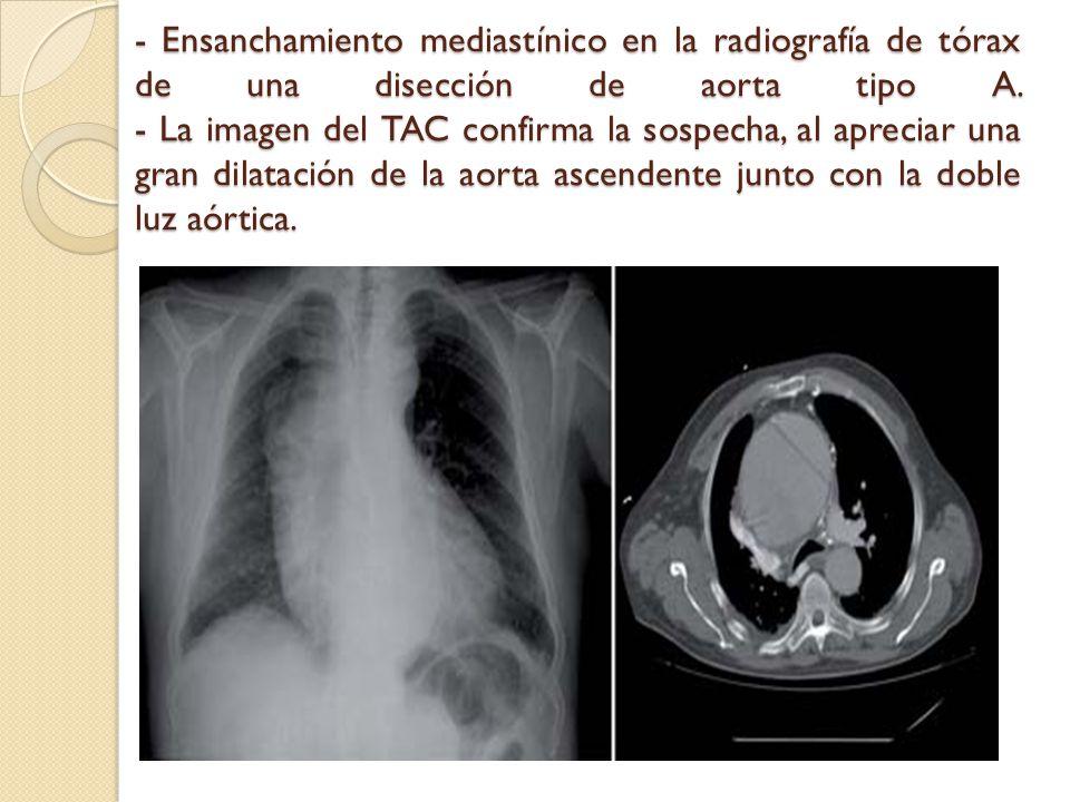 - Ensanchamiento mediastínico en la radiografía de tórax de una disección de aorta tipo A. - La imagen del TAC confirma la sospecha, al apreciar una g