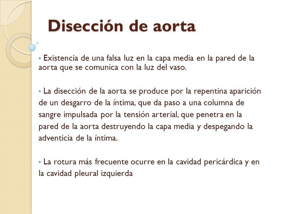 CLASIFICACION - De Bakey: Tipo I: afecta a aorta ascendente y se extiende a la decendente.