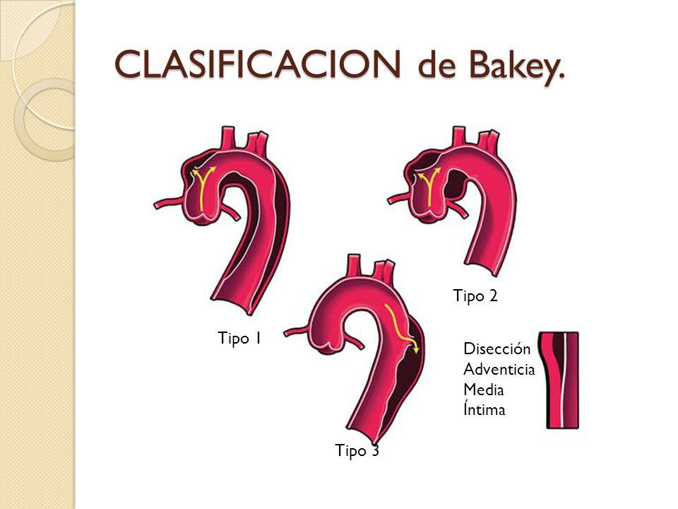 CLASIFICACION de Bakey. Tipo 1 Tipo 3 Tipo 2 Disección Adventicia Media Íntima