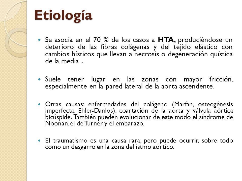 Etiología Se asocia en el 70 % de los casos a HTA, produciéndose un deterioro de las fibras colágenas y del tejido elástico con cambios hísticos que l