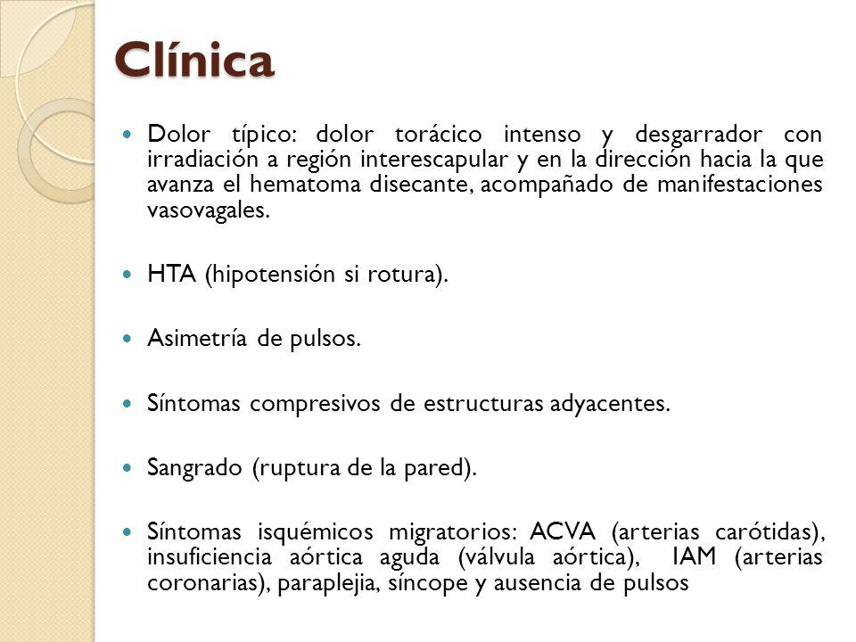 Clínica Dolor típico: dolor torácico intenso y desgarrador con irradiación a región interescapular y en la dirección hacia la que avanza el hematoma d