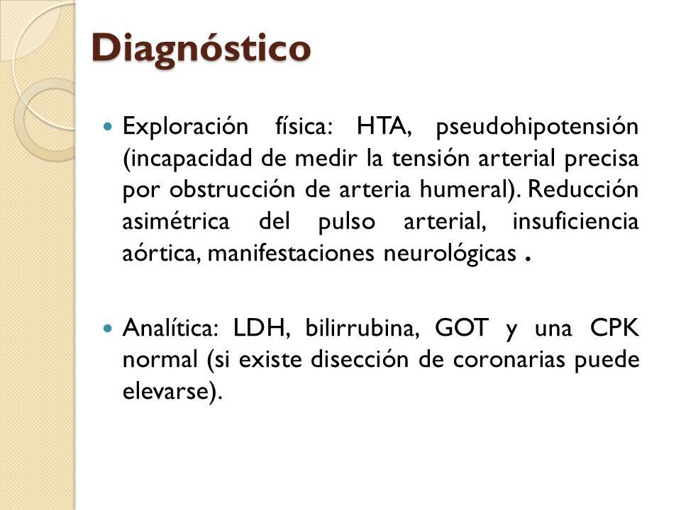 Diagnóstico Exploración física: HTA, pseudohipotensión (incapacidad de medir la tensión arterial precisa por obstrucción de arteria humeral). Reducció