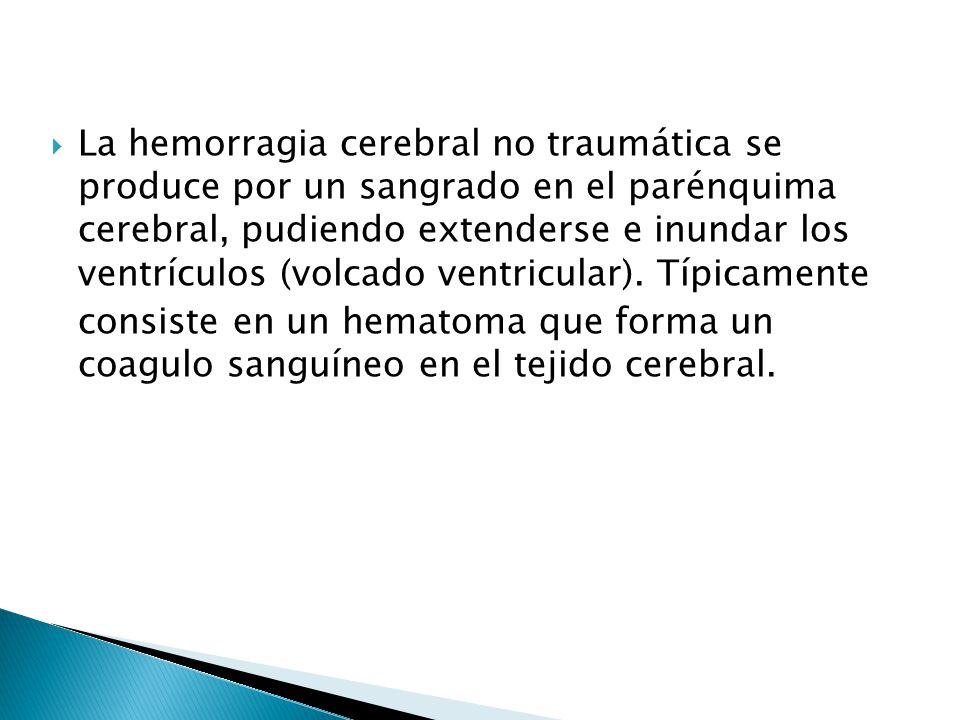 La hemorragia cerebral no traumática se produce por un sangrado en el parénquima cerebral, pudiendo extenderse e inundar los ventrículos (volcado vent