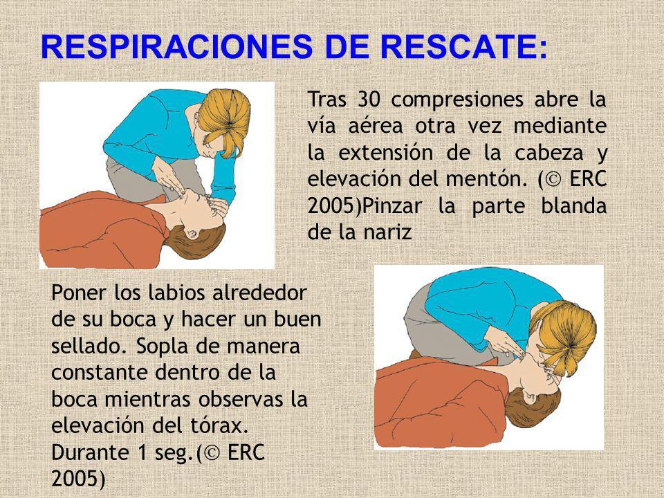 RESPIRACIONES DE RESCATE: Tras 30 compresiones abre la vía aérea otra vez mediante la extensión de la cabeza y elevación del mentón. ( ERC 2005)Pinzar