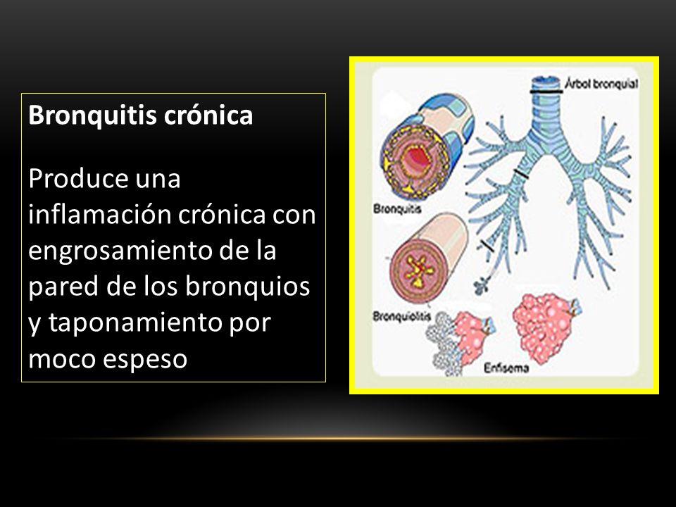 Bronquitis crónica Produce una inflamación crónica con engrosamiento de la pared de los bronquios y taponamiento por moco espeso