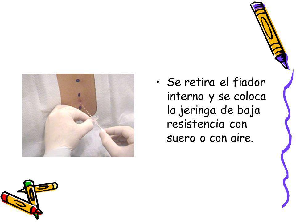 Se retira el fiador interno y se coloca la jeringa de baja resistencia con suero o con aire.