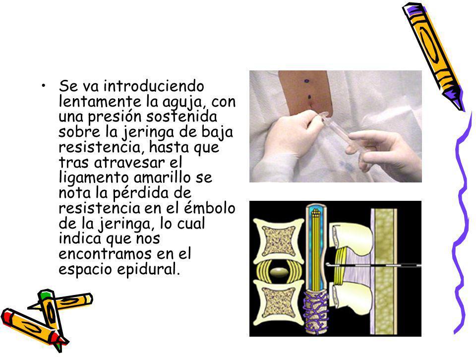 Se va introduciendo lentamente la aguja, con una presión sostenida sobre la jeringa de baja resistencia, hasta que tras atravesar el ligamento amarill