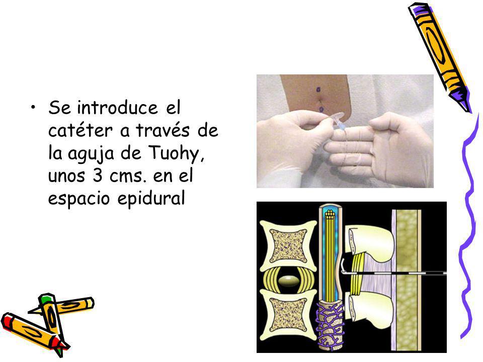 Se introduce el catéter a través de la aguja de Tuohy, unos 3 cms. en el espacio epidural
