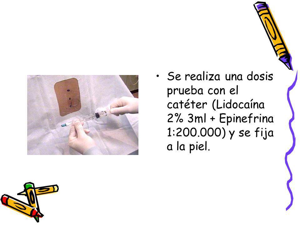 Se realiza una dosis prueba con el catéter (Lidocaína 2% 3ml + Epinefrina 1:200.000) y se fija a la piel.