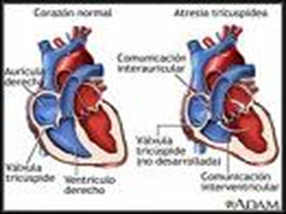 PUNTOS PRINCIPALES Factores de riesgo coronario Clinica de la isquemia miocardica Sindrome coronario agudo