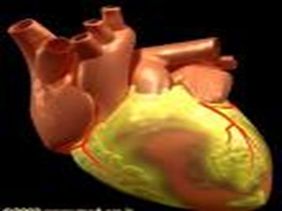 ETIOLOGIA DE CARDIOPATIA ISQUEMICA Procesos intratoracicos no cardiovascula- res :neumotorax, pleuritis Procesos intratoracicos cardiovasculares:infarto de miocardio…… Procesos extratoracicos :crisis de panico