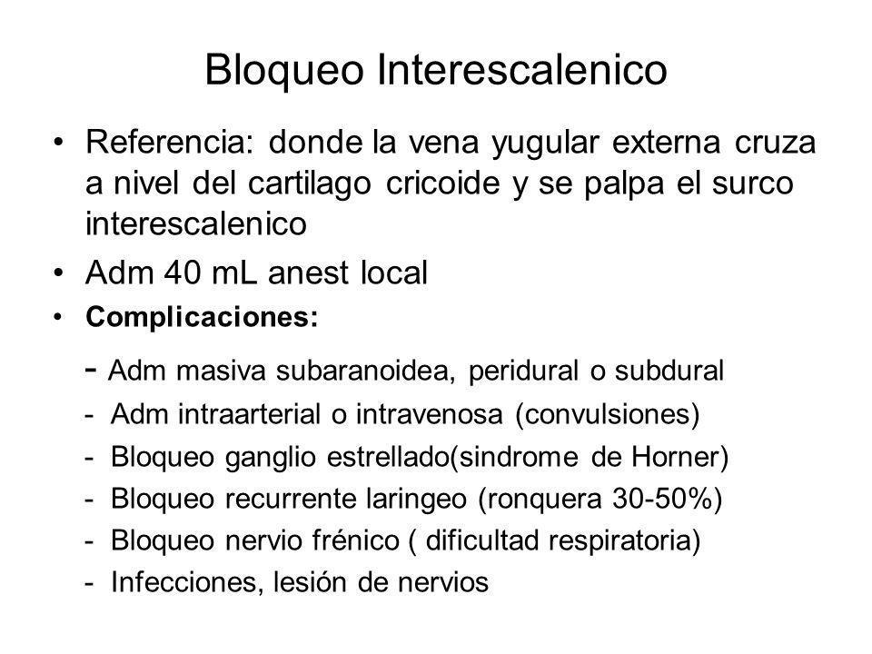 Bloqueo Interescalenico Referencia: donde la vena yugular externa cruza a nivel del cartilago cricoide y se palpa el surco interescalenico Adm 40 mL a