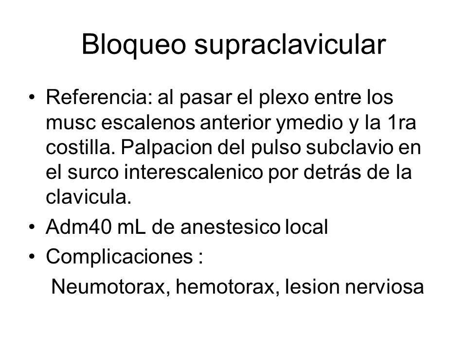 Bloqueo supraclavicular Referencia: al pasar el plexo entre los musc escalenos anterior ymedio y la 1ra costilla. Palpacion del pulso subclavio en el