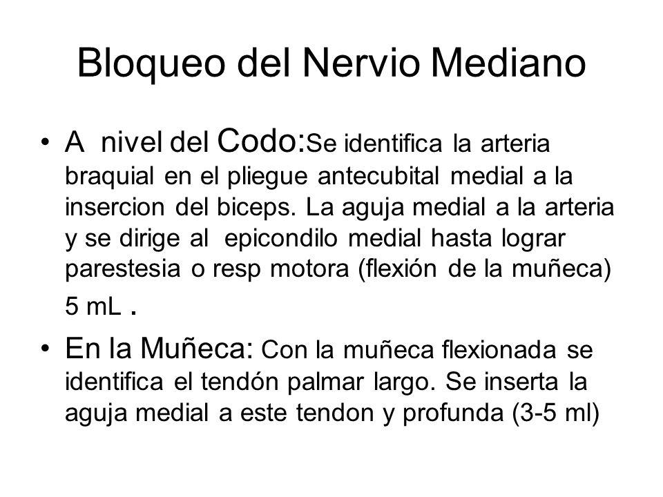 Bloqueo del Nervio Mediano A nivel del Codo: Se identifica la arteria braquial en el pliegue antecubital medial a la insercion del biceps. La aguja me