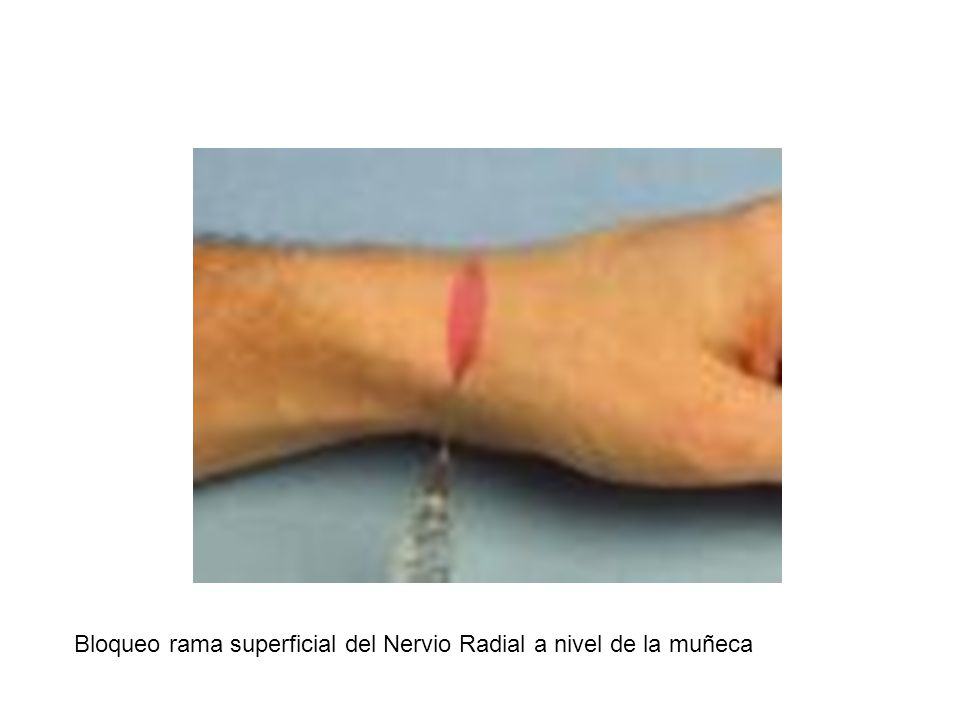 Bloqueo rama superficial del Nervio Radial a nivel de la muñeca