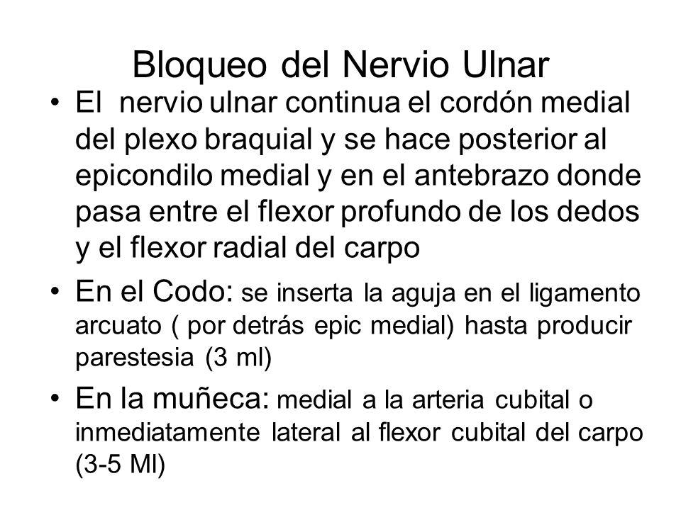 Bloqueo del Nervio Ulnar El nervio ulnar continua el cordón medial del plexo braquial y se hace posterior al epicondilo medial y en el antebrazo donde