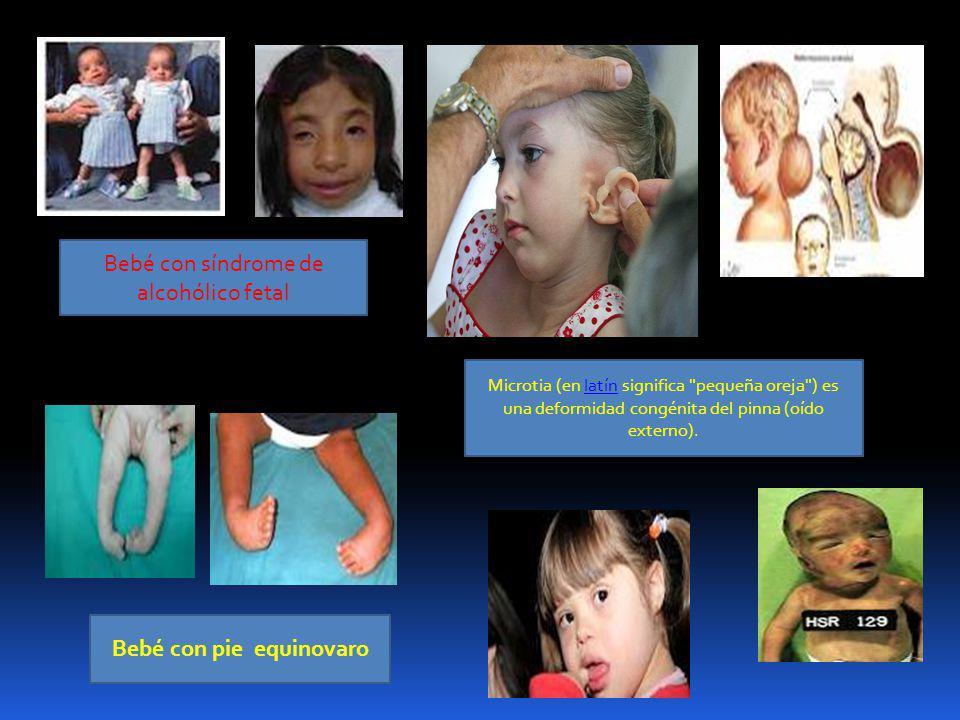 Bebé con pie equinovaro Bebé con síndrome de alcohólico fetal Microtia (en latín significa