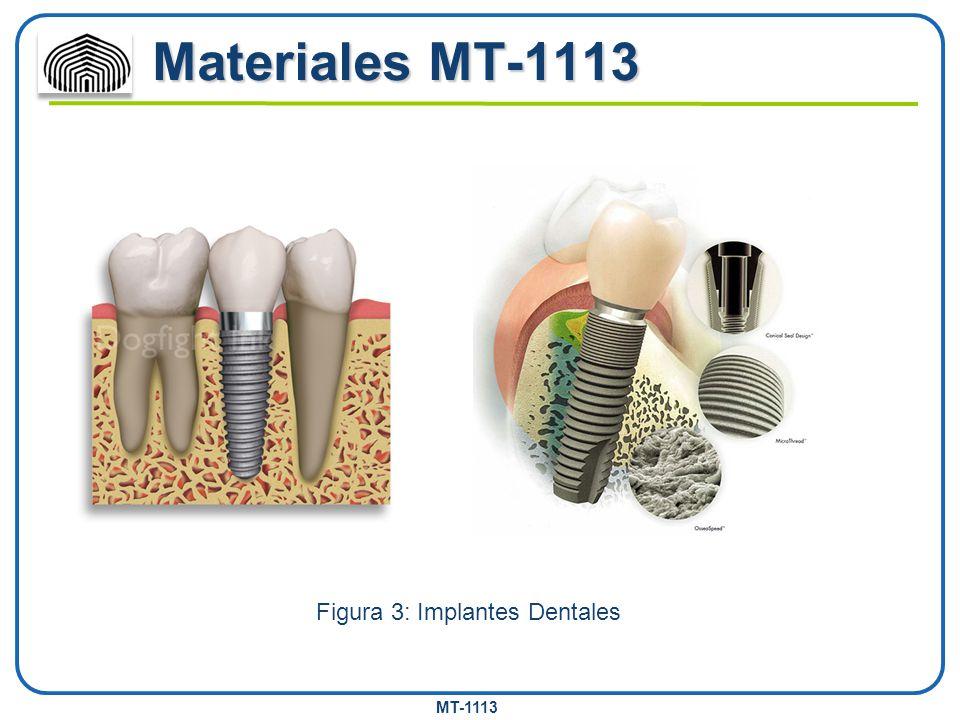 MT-1113 Materiales MT-1113 Figura 3: Implantes Dentales