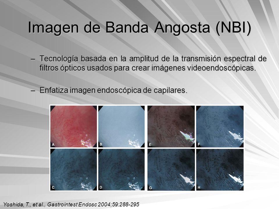 Imagen de Banda Angosta (NBI) –Tecnología basada en la amplitud de la transmisión espectral de filtros ópticos usados para crear imágenes videoendoscó