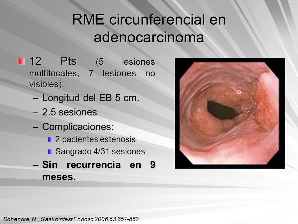 RME circunferencial en adenocarcinoma 12 Pts (5 lesiones multifocales, 7 lesiones no visibles): –Longitud del EB 5 cm. –2.5 sesiones –Complicaciones: