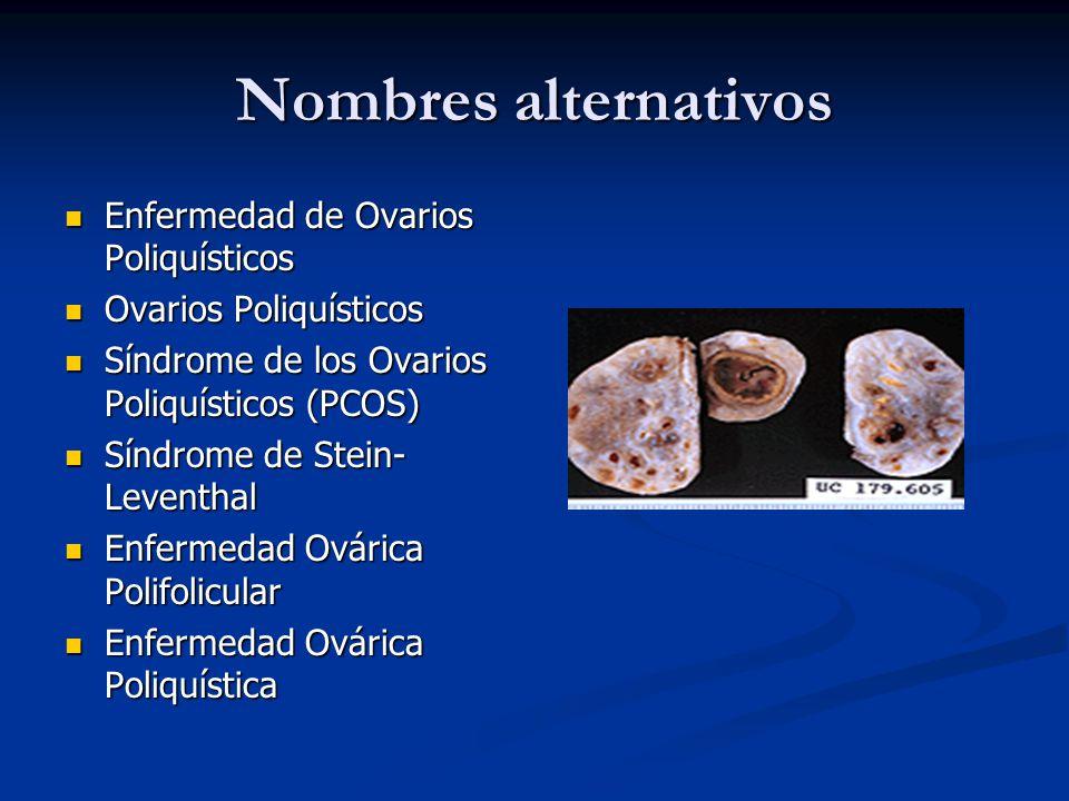 Nombres alternativos Enfermedad de Ovarios Poliquísticos Enfermedad de Ovarios Poliquísticos Ovarios Poliquísticos Ovarios Poliquísticos Síndrome de l