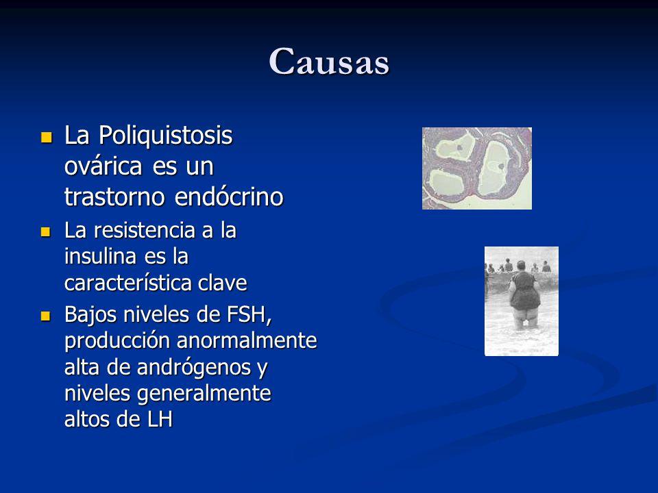 Causas La Poliquistosis ovárica es un trastorno endócrino La Poliquistosis ovárica es un trastorno endócrino La resistencia a la insulina es la caract