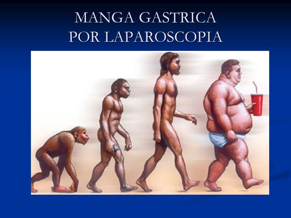 La cirugía de MANGA GASTRICA consiste en extirpar el 66% del estomago convirtiéndolo así en un tubo, como si fuera una manga de camisa.