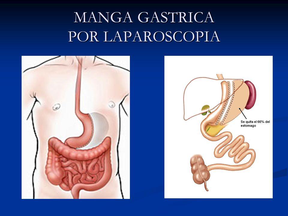 MANGA GASTRICA POR LAPAROSCOPIA