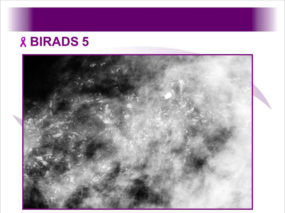 BIRADS 5