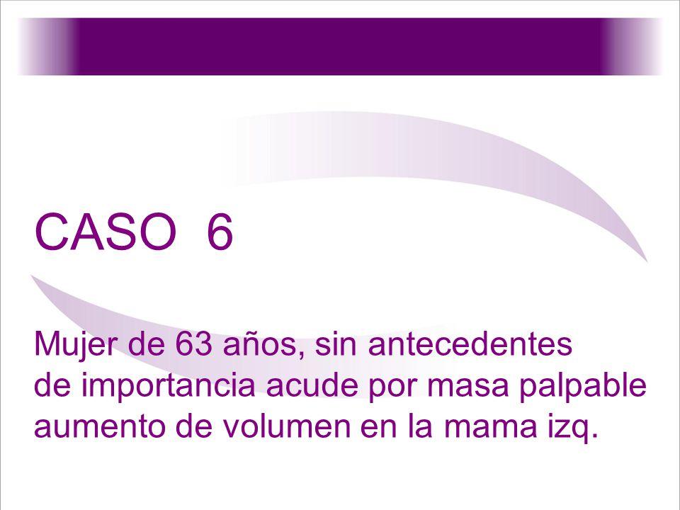 CASO 6 Mujer de 63 años, sin antecedentes de importancia acude por masa palpable aumento de volumen en la mama izq.