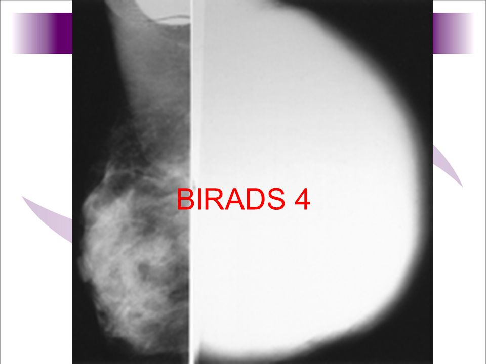BIRADS 4