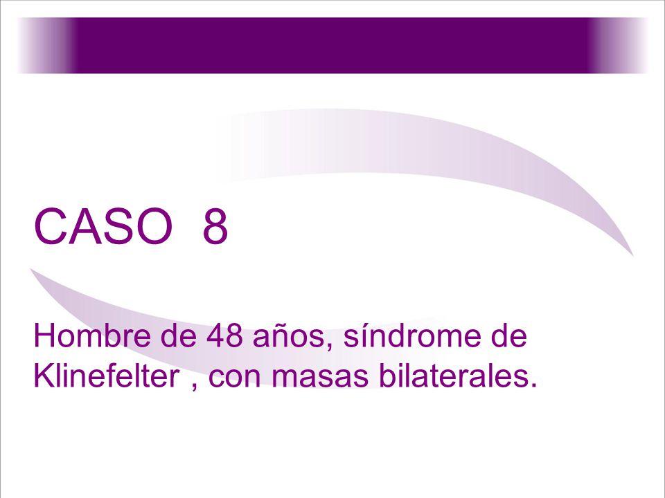 CASO 8 Hombre de 48 años, síndrome de Klinefelter, con masas bilaterales.