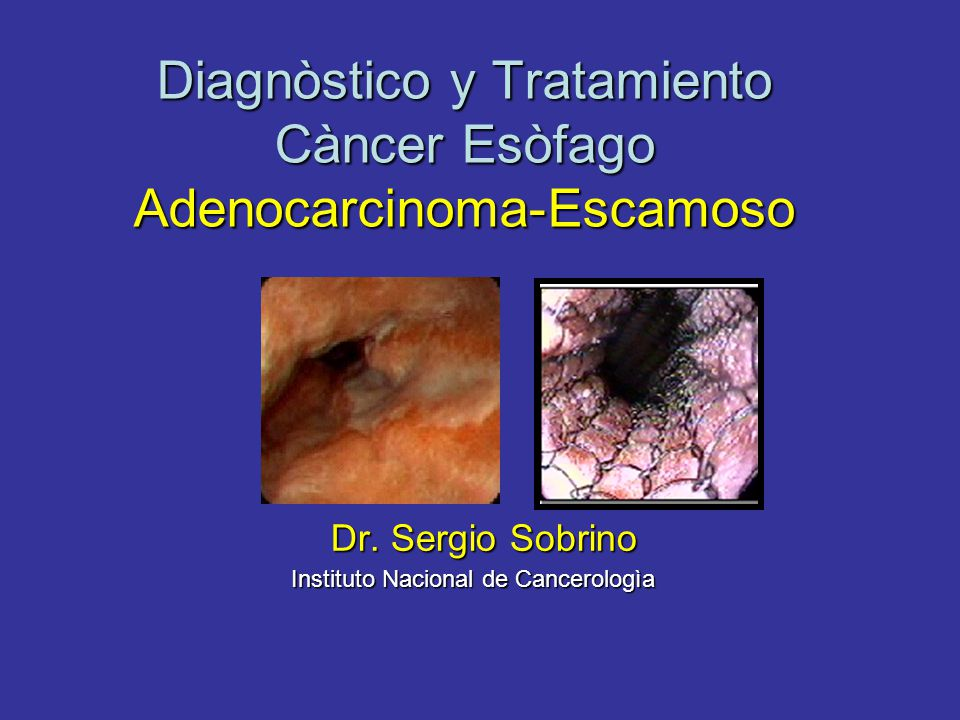 Diagnòstico y Tratamiento Càncer Esòfago Adenocarcinoma-Escamoso Dr.