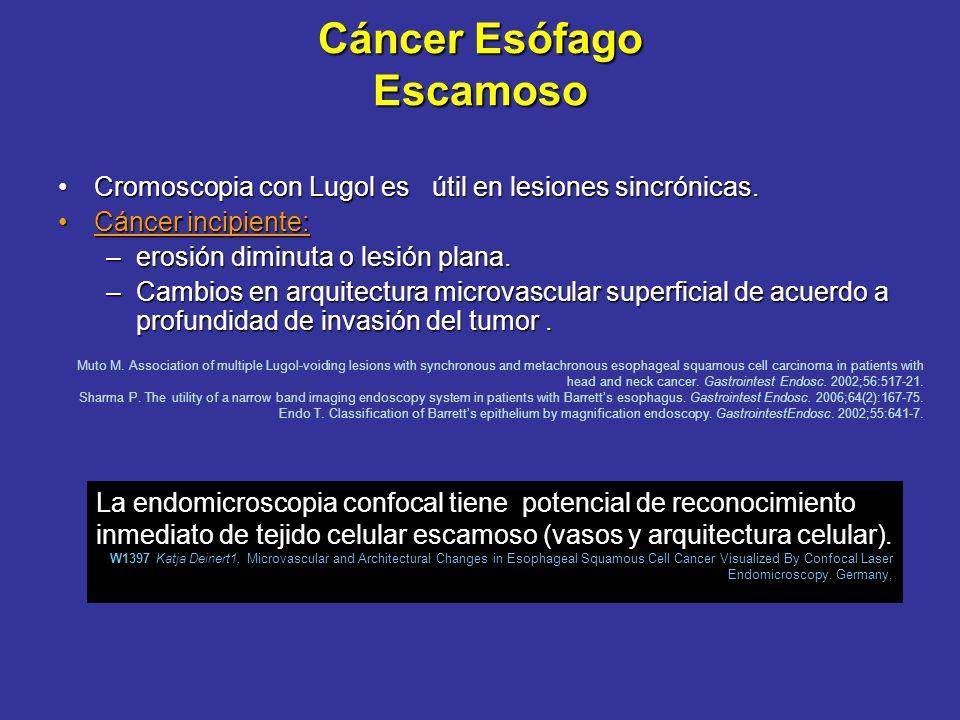 Cromoscopia e Imagen Banda Angosta (IBA o NBI) Tejido anormalmente elevado / aumentar contraste de tejido redundante.Tejido anormalmente elevado / aum