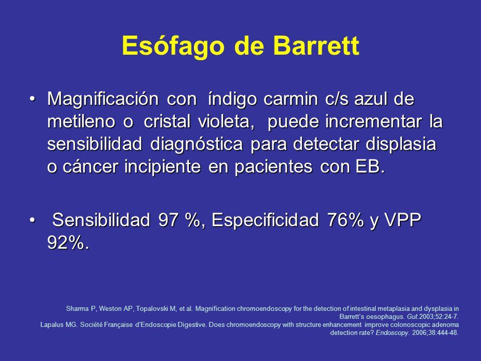 Cáncer Esófago Escamoso Cromoscopia con Lugol es útil en lesiones sincrónicas.Cromoscopia con Lugol es útil en lesiones sincrónicas. Cáncer incipiente