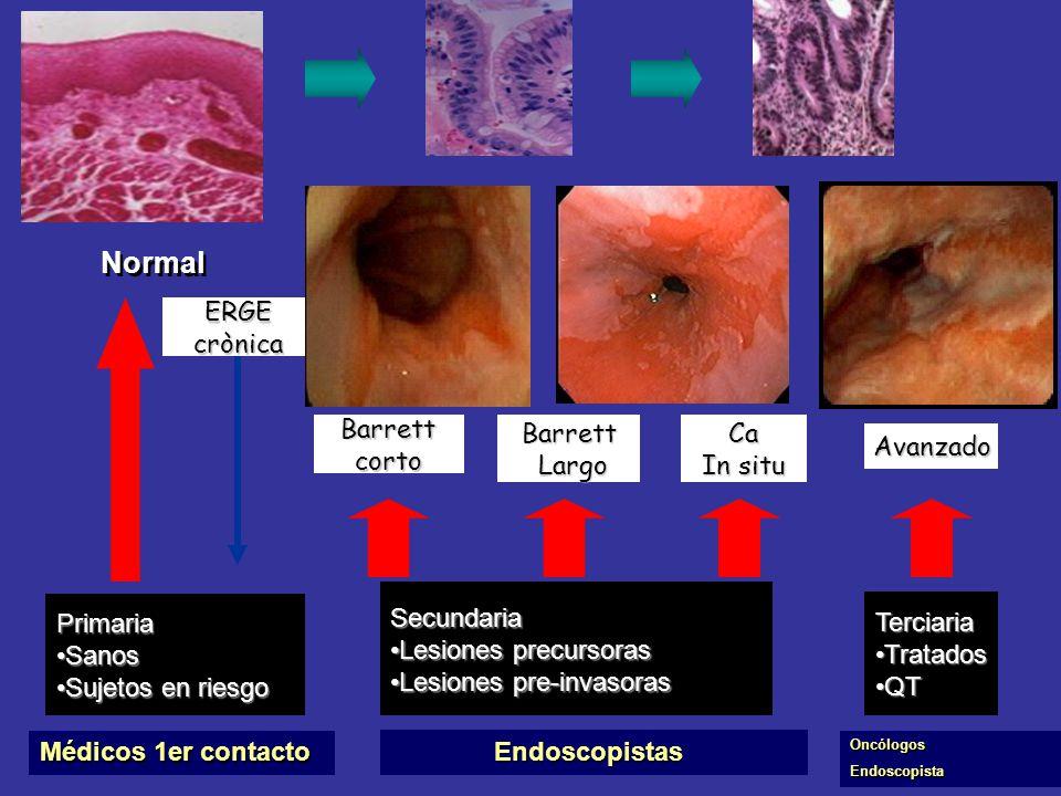Diagnòstico y Tratamiento Càncer Esòfago Adenocarcinoma-Escamoso Dr. Sergio Sobrino Instituto Nacional de Cancerologìa