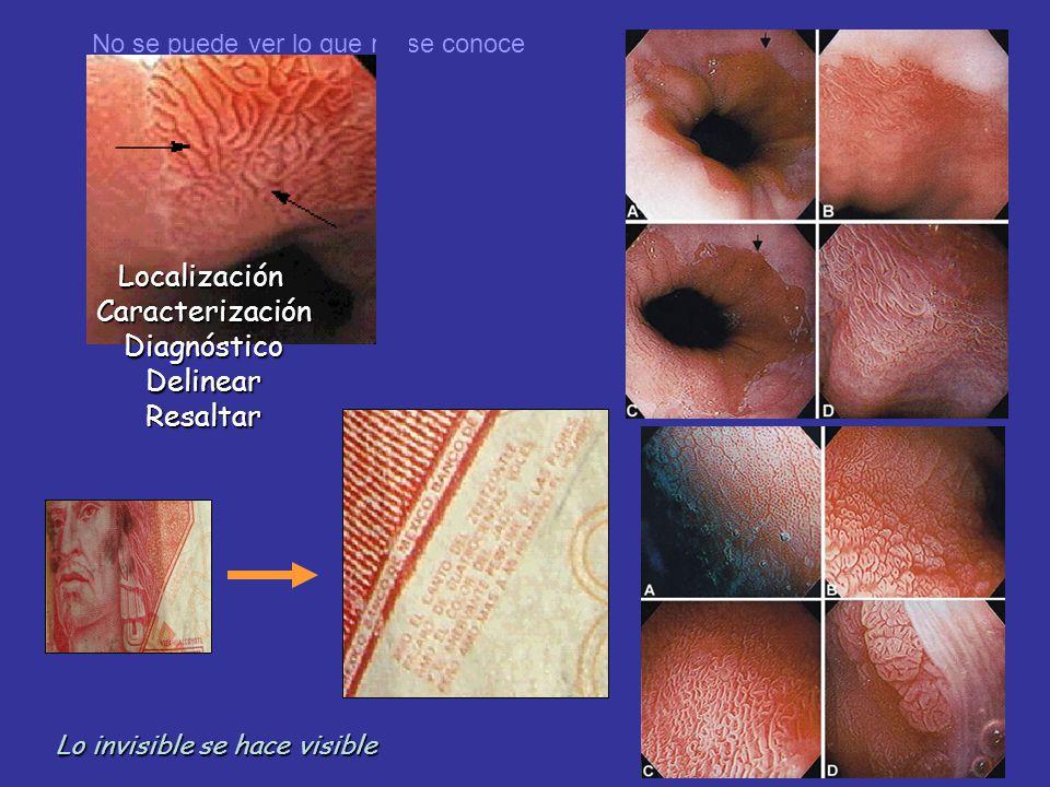 Screening: Nuevas tècnicas 1.Cromo o magnificaciòn 2.Càpsula 3.Microscopia confocal 4.NBI 5.Tomografìa òptica coherente Wang KK. Gastroenterology. 200