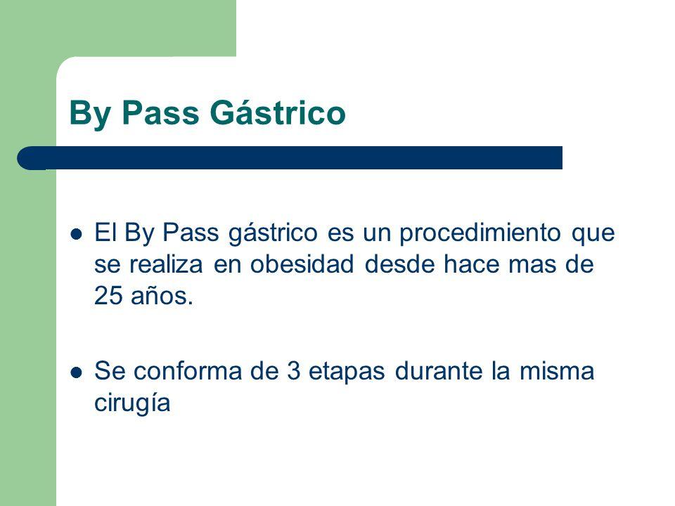 By Pass Gástrico El By Pass gástrico es un procedimiento que se realiza en obesidad desde hace mas de 25 años. Se conforma de 3 etapas durante la mism